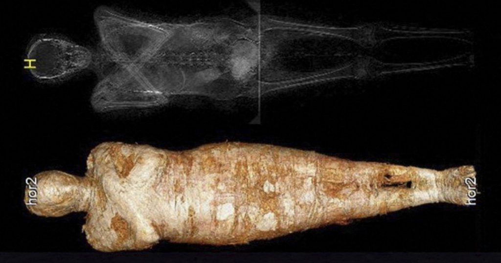 Researchers in Warsaw discover an embryo in a mummy