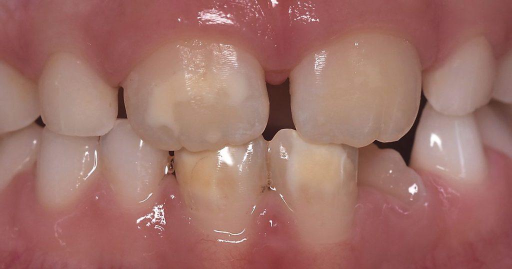 Chalk teeth in children: big concerns with small teeth