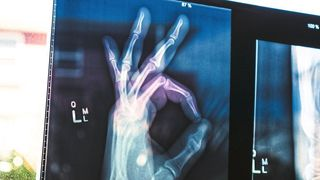 Broken bones?  Not a problem.  At least if it were up to Jena researchers who developed a new self-healing bone cement (avatar).